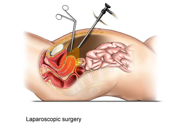 Diagnostic and Operative Laparoscopy