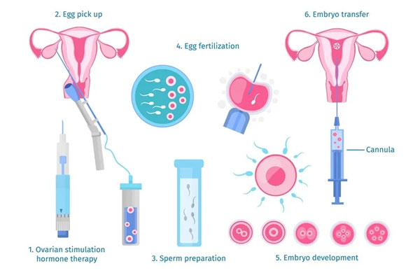 In Vitro Fertilization and Embryo Transfer (IVF-ET)