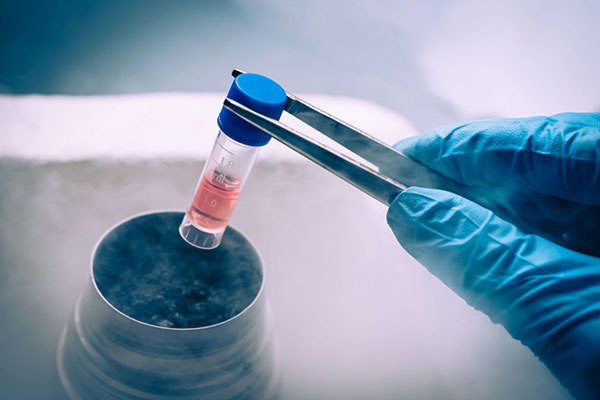 Sperm Cryopreservation