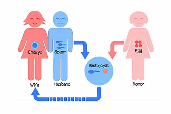 IVF Cycle (with Donor Egg)