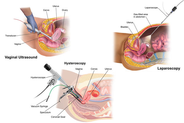 IVF treatment with TVS, Hysteroscopy and laparoscopy technique