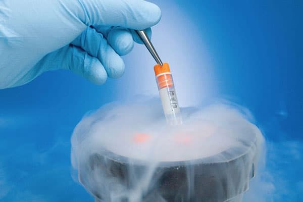 IVF with Frozen Semen and Embryo